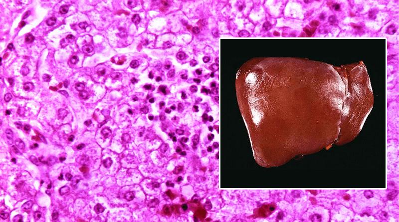 histology of human liver