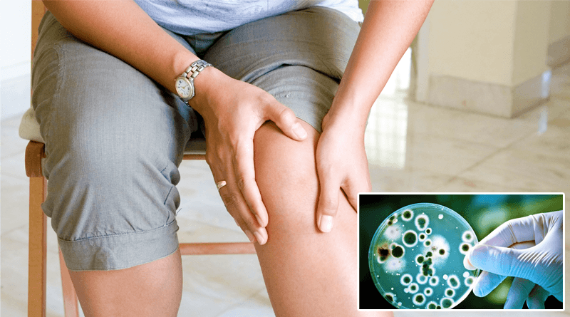 Joint Pain Associated With Bacteria in the Gut