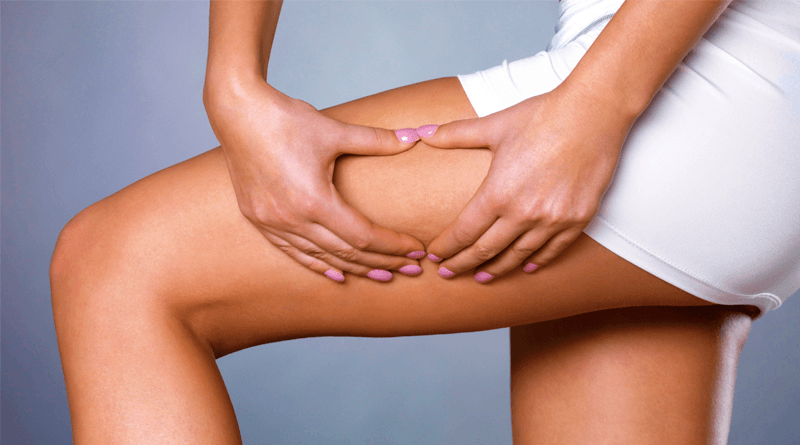 The Most Recommended Exercises to Combat Cellulite