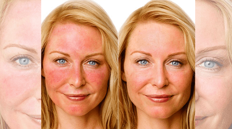 Treatment and Recommendations to Combat Rosacea