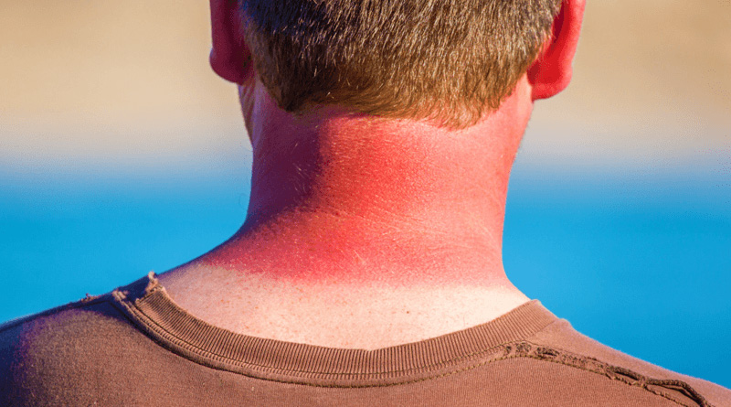 6 Good Natural Remedies to Relieve Sunburn