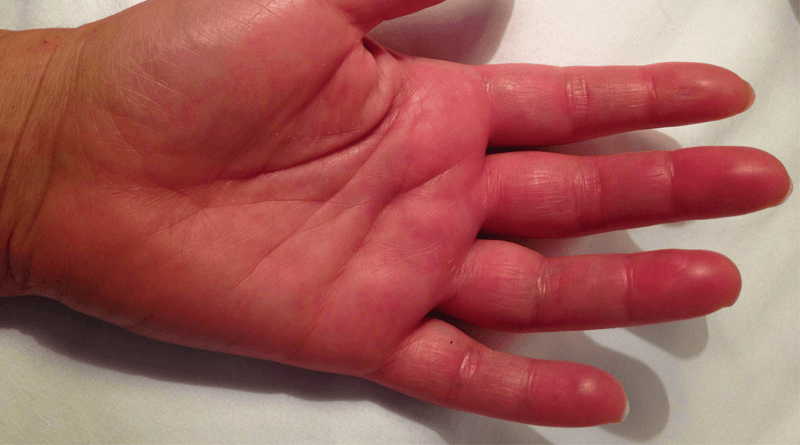 Causes of Swelling in the Fingers