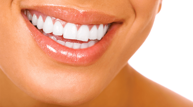 Effective Tips of Teeth Whitening