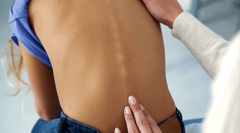 Scoliosis Types Attitude and Diagnosis
