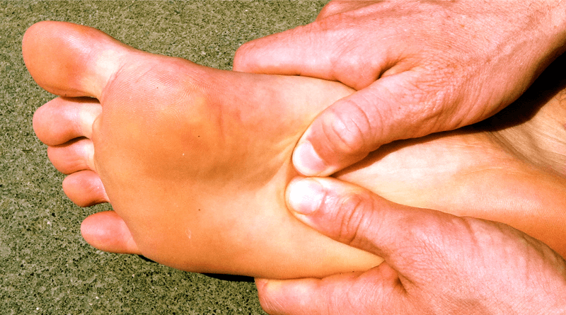 10 Folk Remedies for Plantar Fasciitis