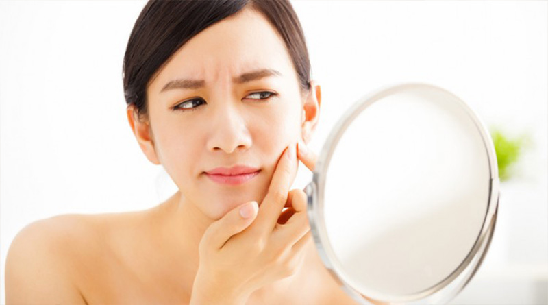 5 Effective Treatments to Remove Scars Caused by Acne