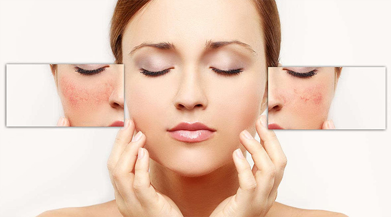 6 Natural ingredients to Mitigate the Spots on the Face
