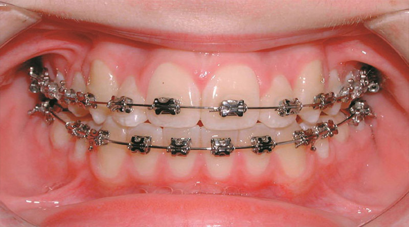 Do not wait too long to correct children's teeth