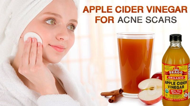 Benefits of Using Apple Cider Vinegar to Wash the Face