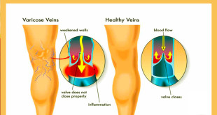 Medicinal plants to treat varicose veins