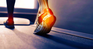 Ankle sprain symptoms causes and treatment