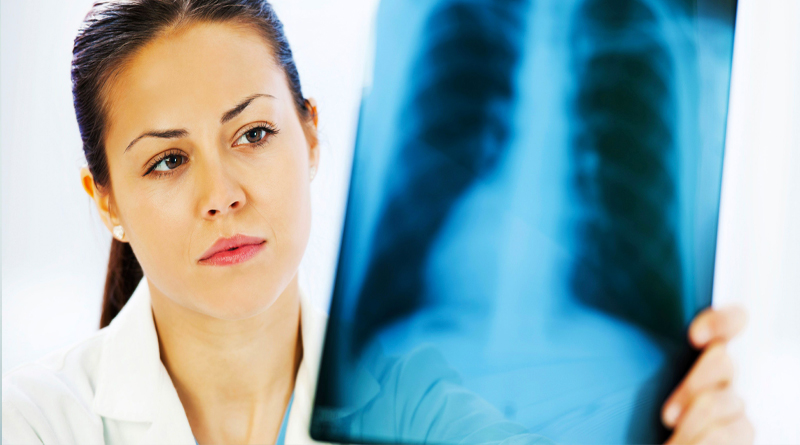 Signs and symptoms of TB 2